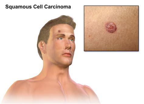 Carcinoma Duttale Infiltrante G3 Sopravvivenza image 10